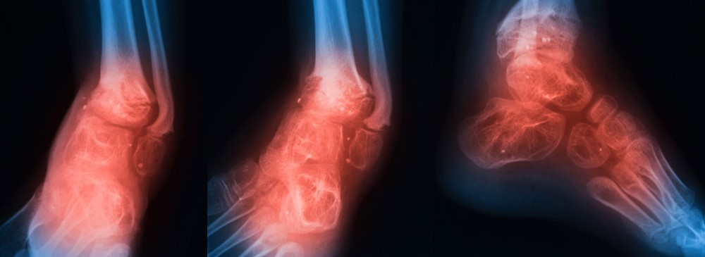 Osteomyelitis in the Foot and Ankle: Principles of Diagnosis and Treatment